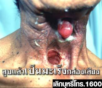 Pictorial warning in Thailand / Source: http://www.tobaccolabels.ca
